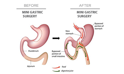 Mini Gastric Bypass Dr Mahidhar Valeti
