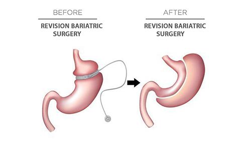 Revision Bariatric Surgery Dr Mahidhar Valeti